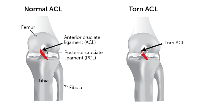 ACL-Condition.png