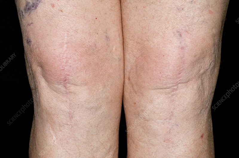 C0069195-Total_knee_replacement_scars.jpg